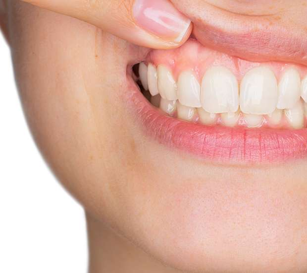 Flower Mound Gum Disease